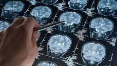 Альцгеймера хвороба: причини виникнення та лікування, суть, початкові симптоми, розвиток, фото хвороби альцгеймера