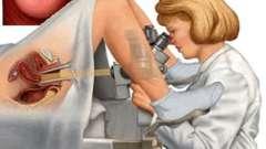 Біопсія шийки матки: що це і навіщо проводиться дана процедура?