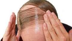 Що робити, якщо випало волосся