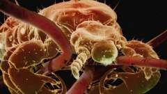 Ектопаразити - це що таке? Як позбутися від паразитів на поверхні тіла людини і тварин?