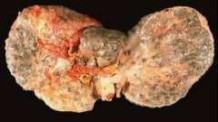 Як можна заразитися гепатитом с і що можна зробити, щоб цього не сталося