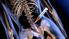 Як стати донором кісткового мозку в росії?