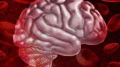 Крововилив в мозок: симптоми, лікування, наслідки, прогноз