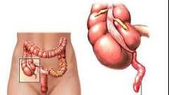 Причини і симптоми хронічного апендициту
