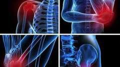 Симптоми бурситу тазостегнового суглоба, діагностика, лікування народними засобами, медикаментозне лікування, фото