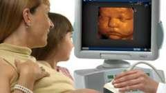 Узі 3д під час вагітності