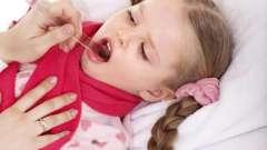 Вірусна ангіна - симптоми, діагностування, лікування