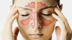 Запалення придаткових пазух носа, або що таке синусити